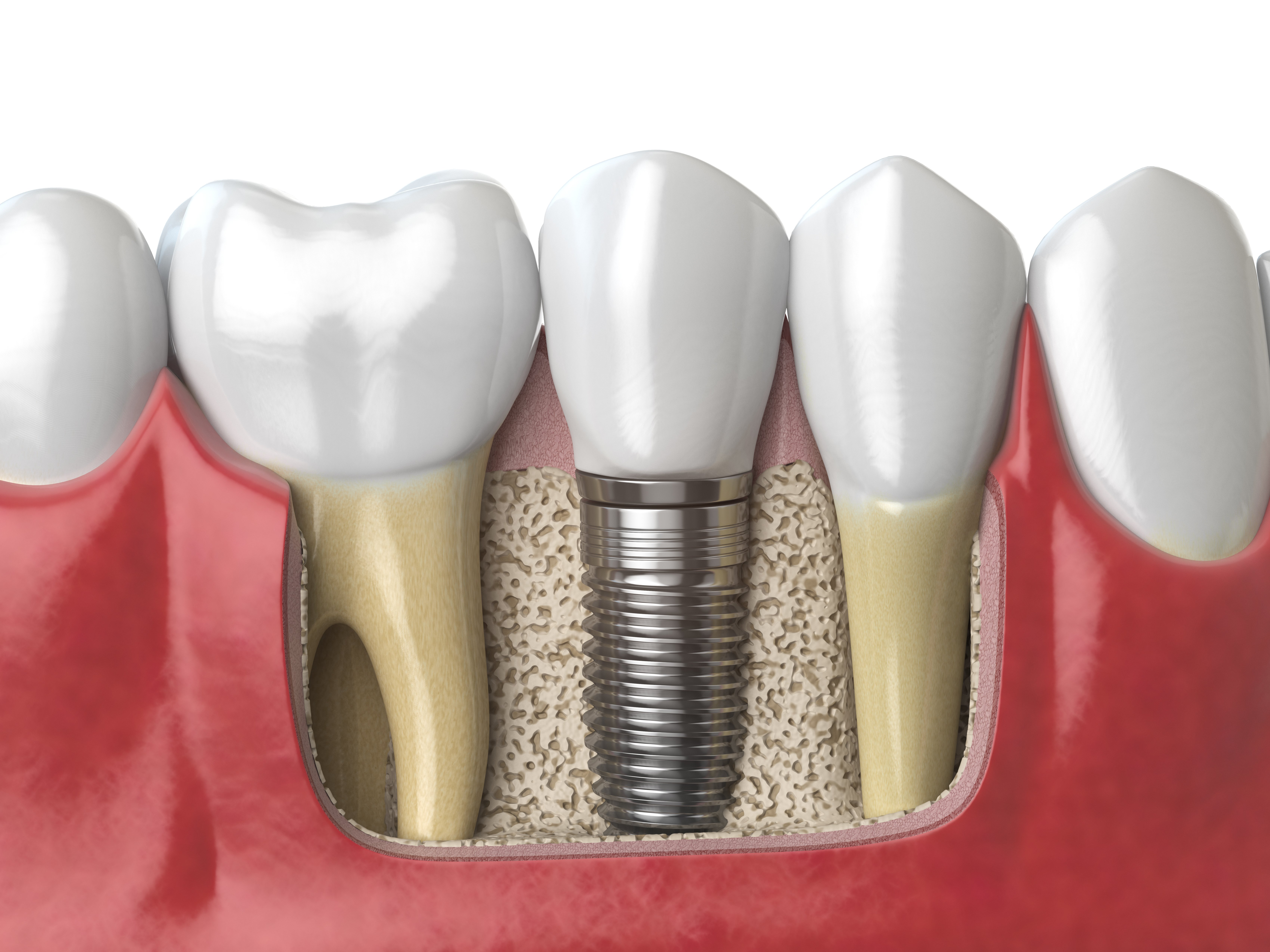 Model of Implant with Teeth Roots