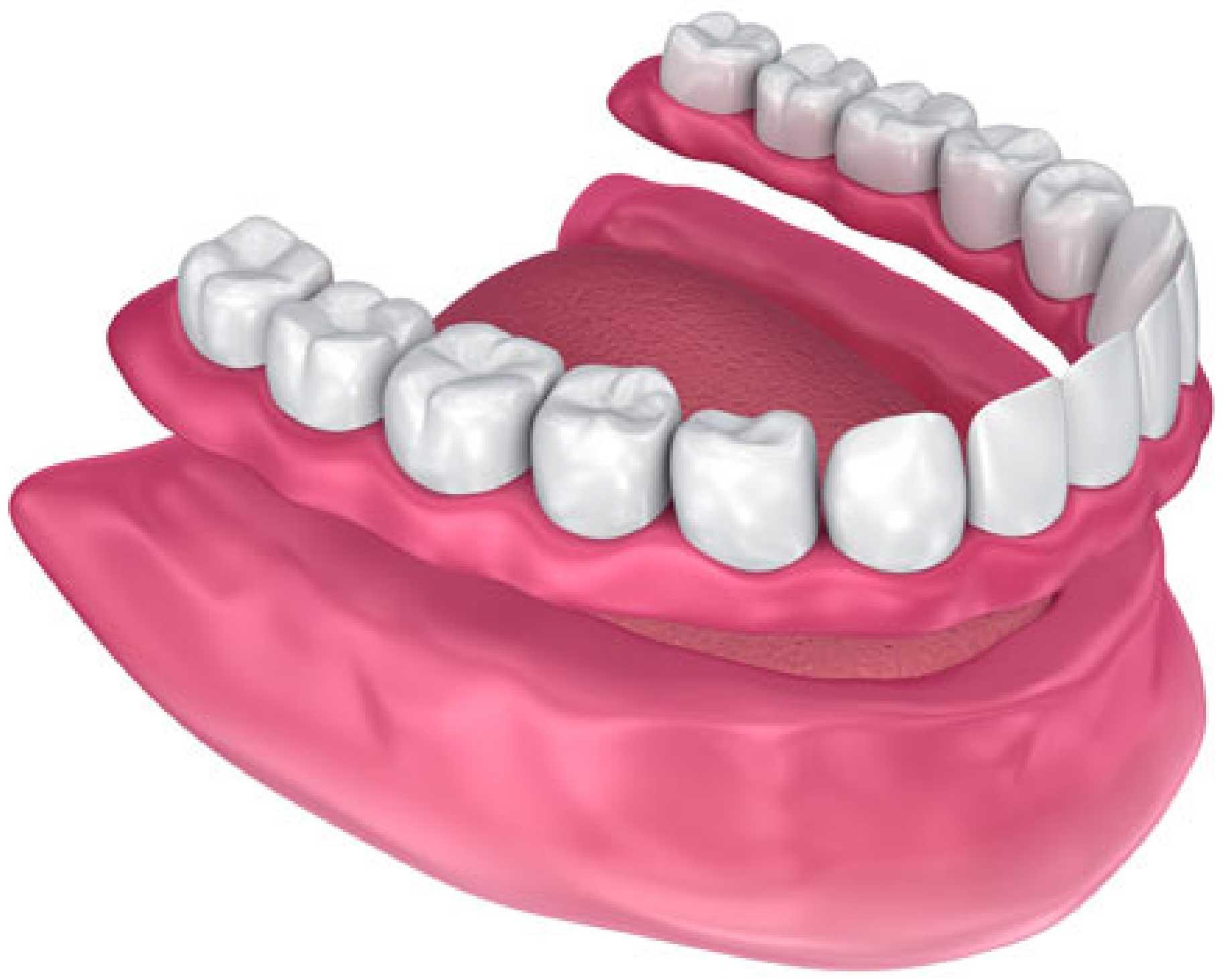 Picture of Partial Denture