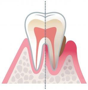 Diagram image of Gum Disease