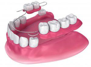 Model of Denture