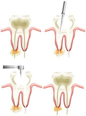Picture of Root Canal