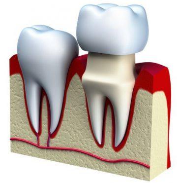 Cutaway Model of Dental Crown