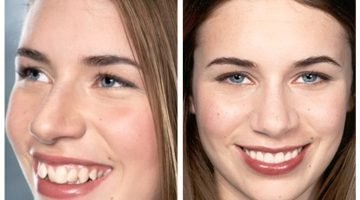 Before and After Clear Smile Aligners