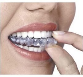 Picture of Clear Aligners being place onto Teeth