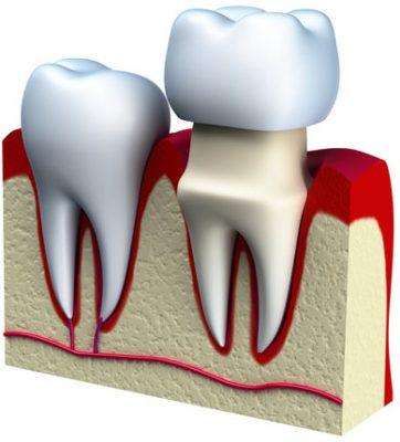 Dental Crown being put on