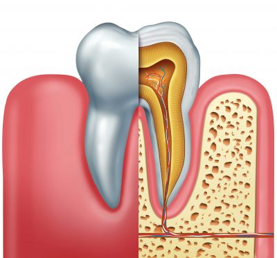 Tooth Nerve sensitivity
