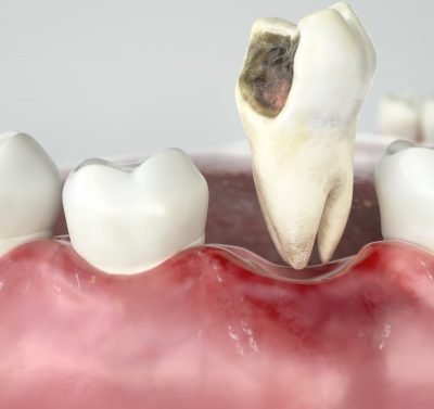 Tooth Extraction of infected tooth