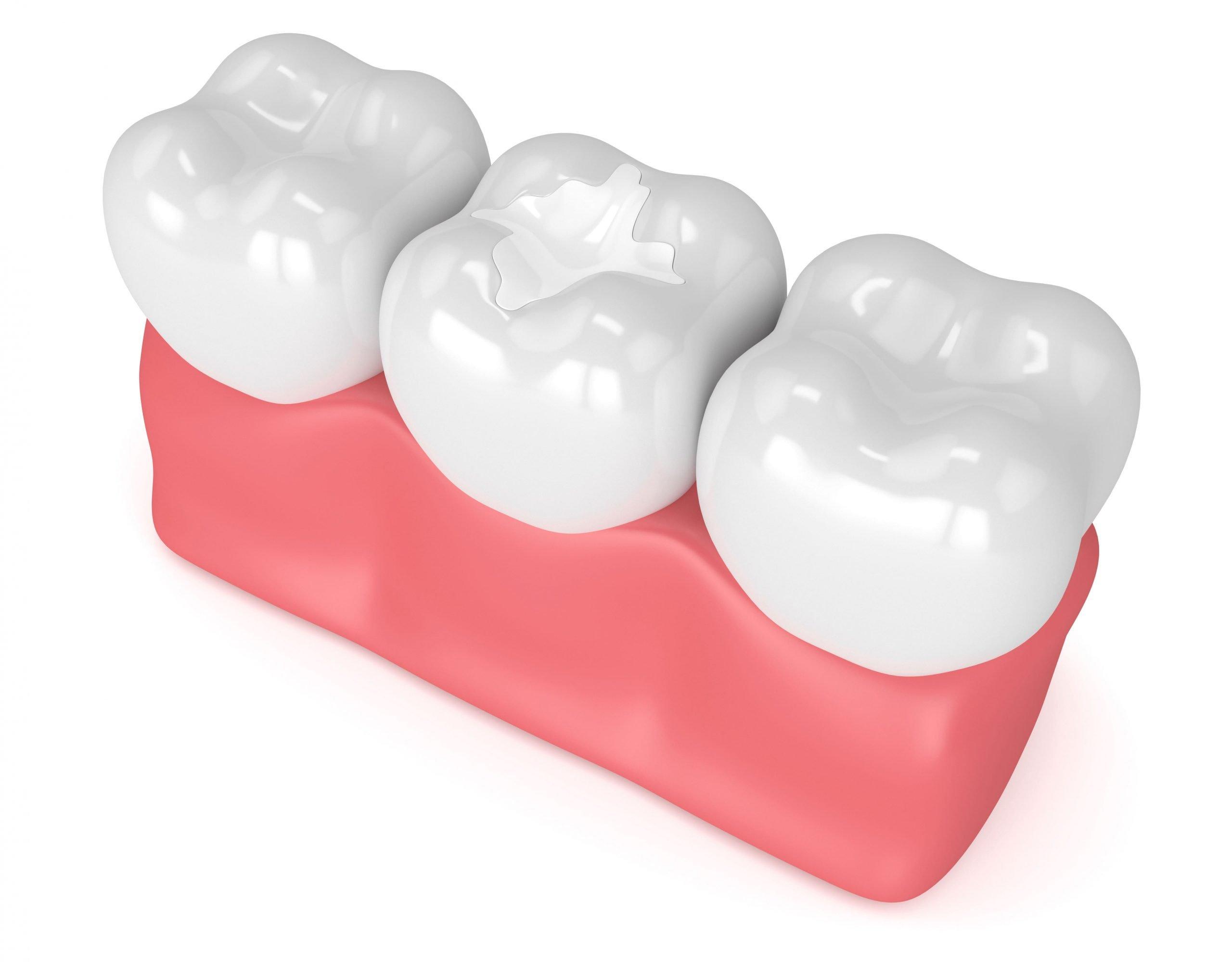 Composite Resin Dental Filling