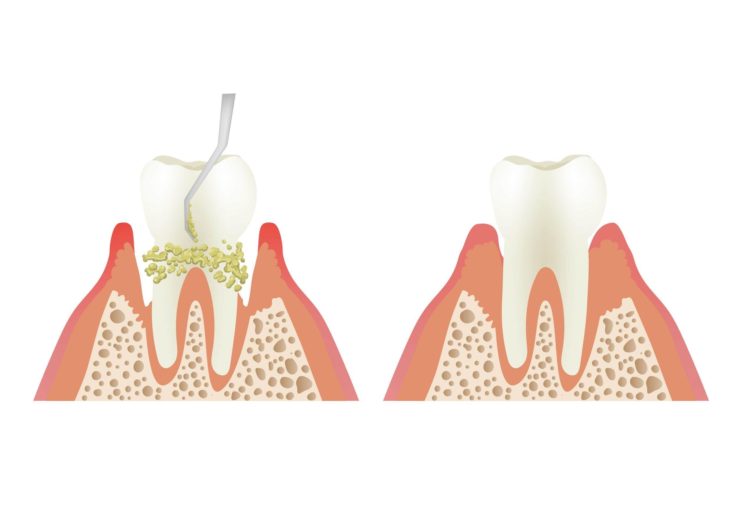 dental scaling diagram