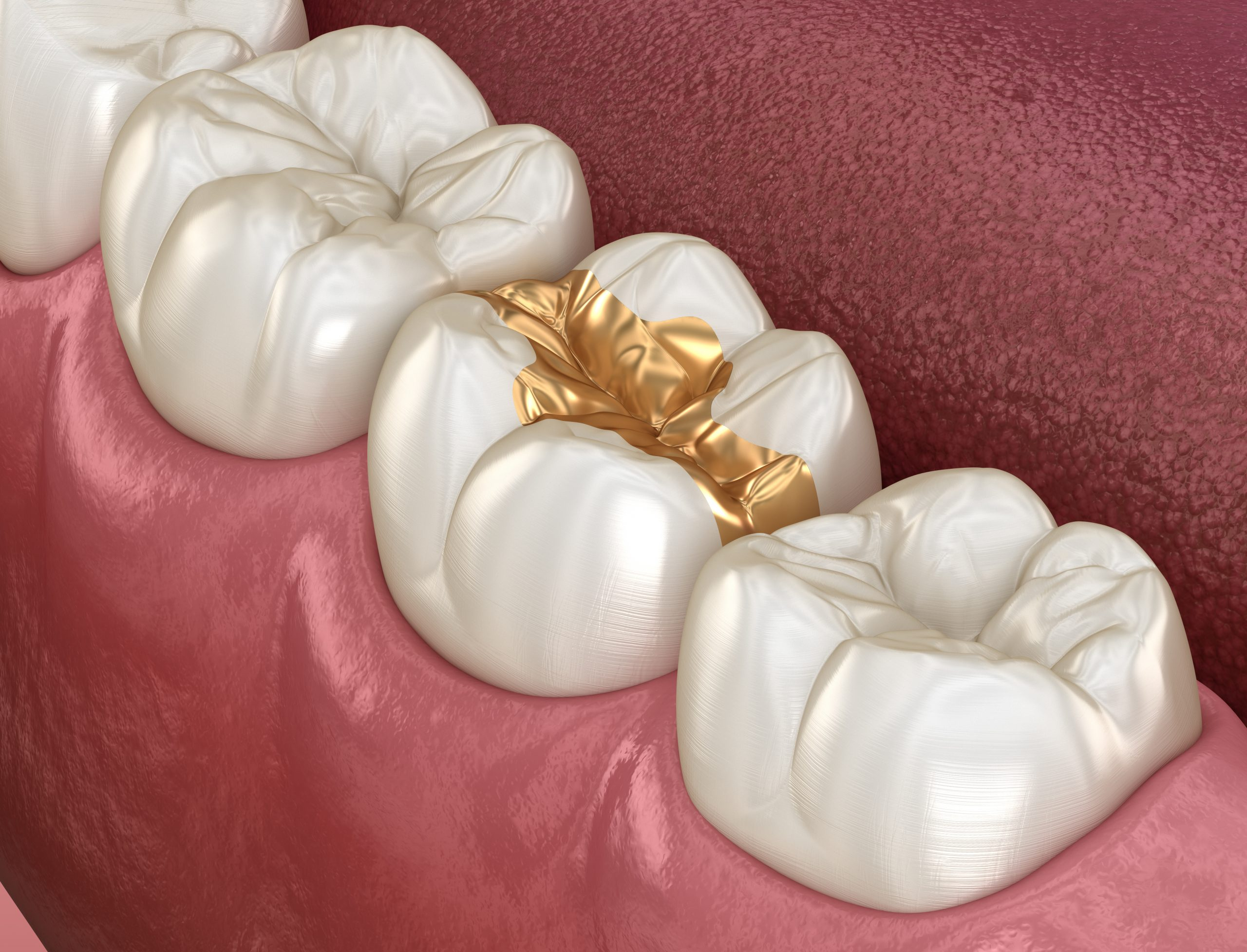 Gold Dental Fillings